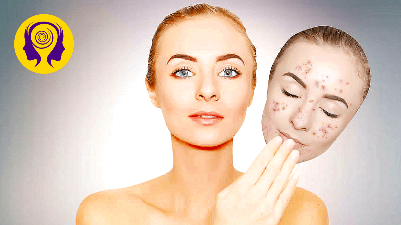 🎧 Clear Skin Subliminal – Get Rid Of Acne Fast!